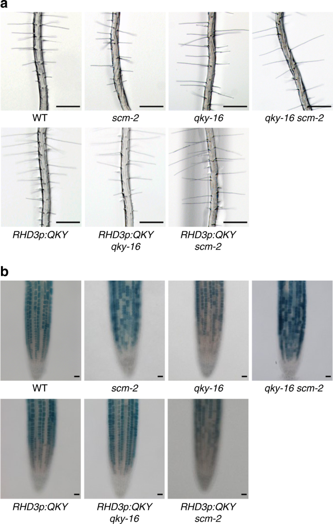 QUIRKY regulates root epidermal cell patterning through
