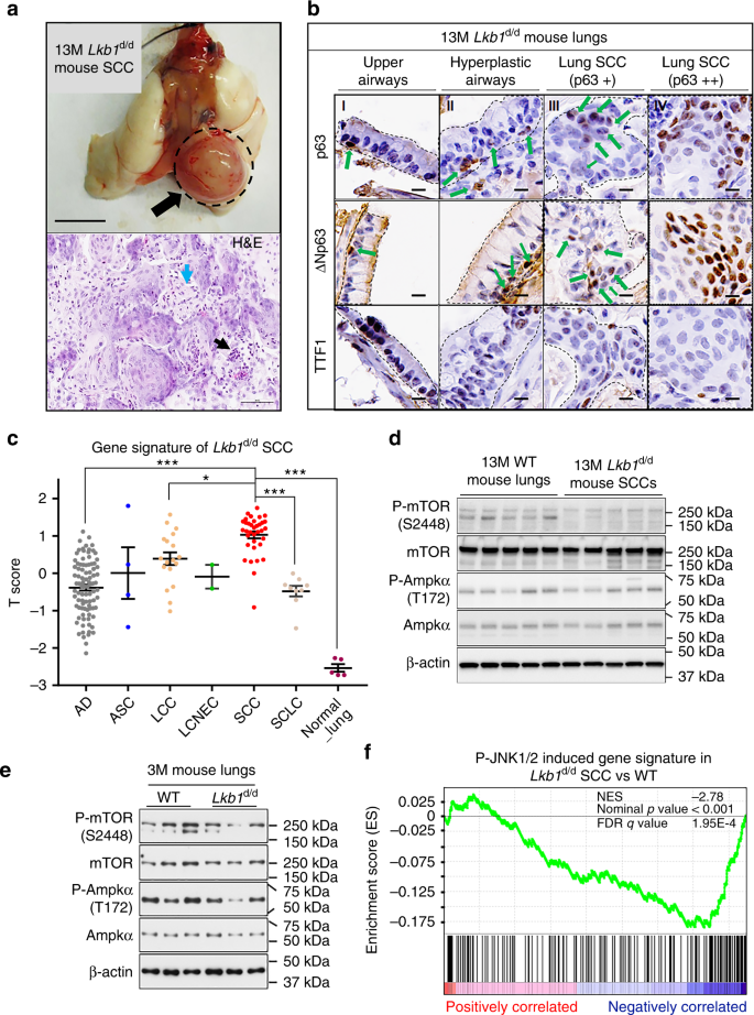 JNK 1/2 represses Lkb 1 -deficiency-induced lung squamous
