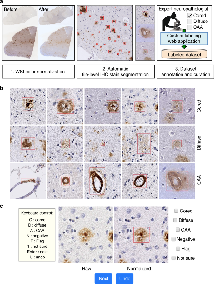 Interpretable classification of Alzheimer's disease pathologies with