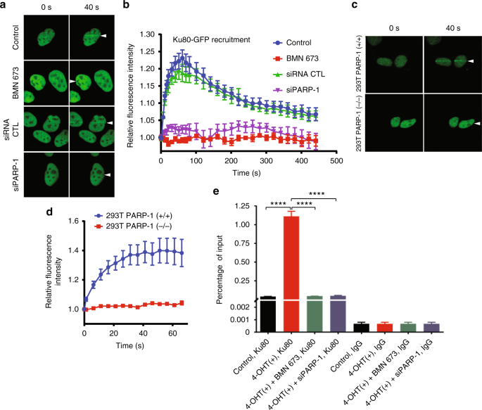 Poly(ADP-ribose) polymerase-1 antagonizes DNA resection at double