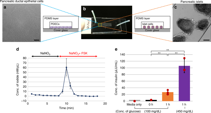 Patient-derived pancreas-on-a-chip to model cystic fibrosis