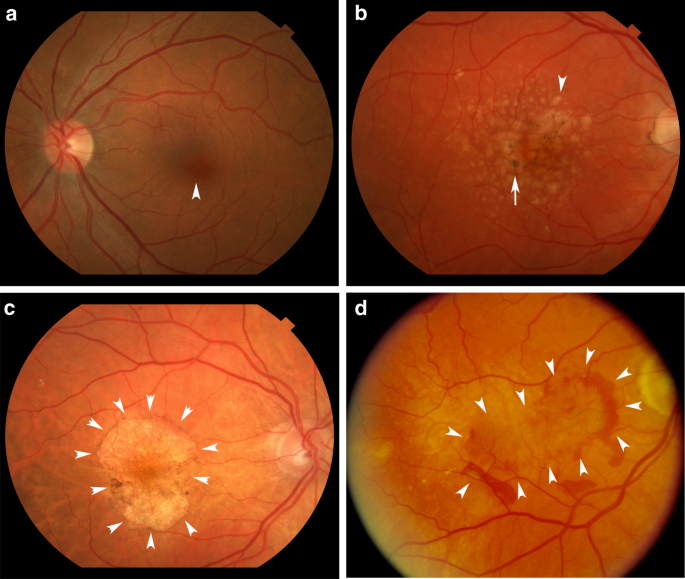 A Systems Biology Approach Towards Understanding And Treating Non Neovascular Age Related Macular Degeneration Nature Communications