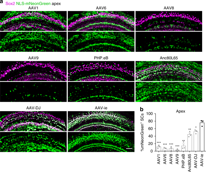 AAV-ie enables safe and efficient gene transfer to inner ear cells
