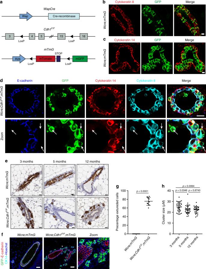 Rebalancing of actomyosin contractility enables mammary