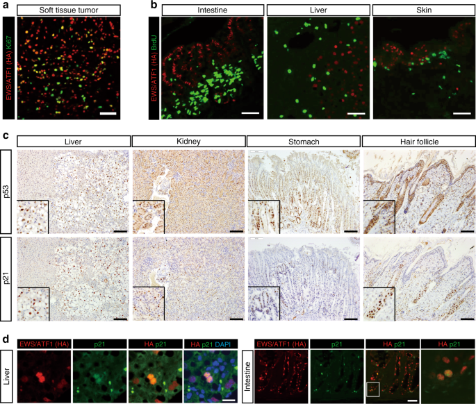 Cell-type dependent enhancer binding of the EWS/ATF1 fusion