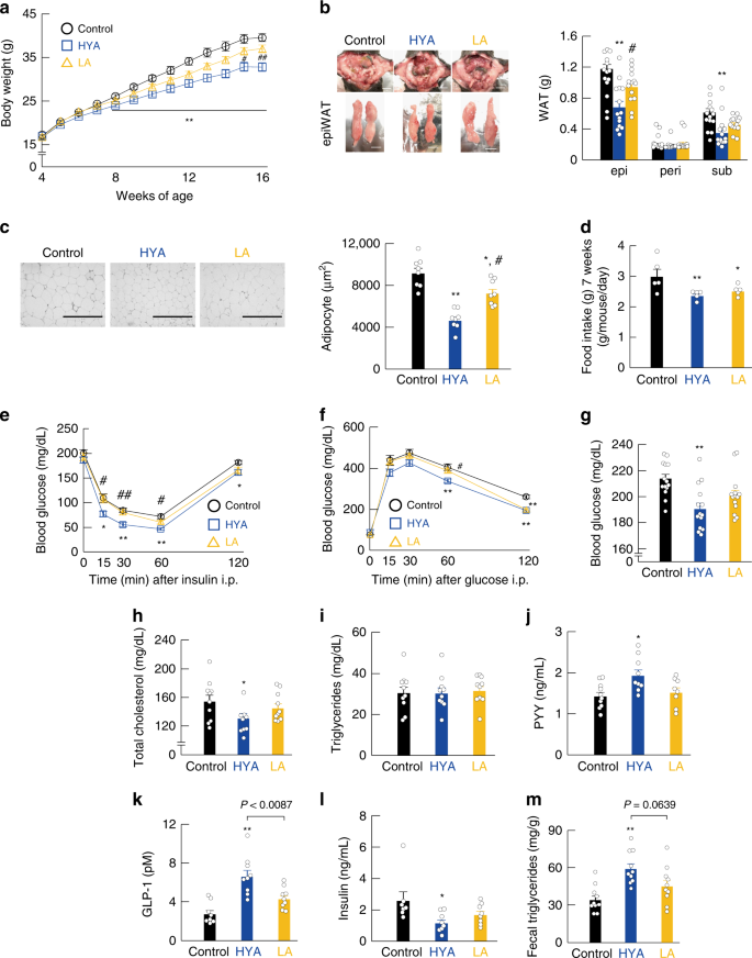 Gut microbiota confers host resistance to obesity by