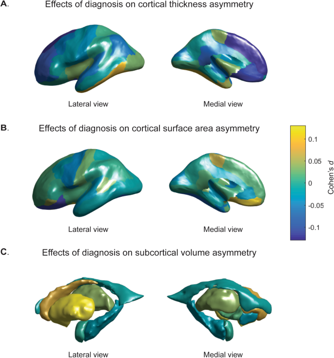 Altered structural brain asymmetry in autism spectrum disorder in a st