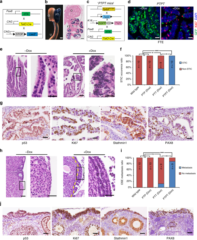 Both Fallopian Tube And Ovarian Surface Epithelium Are Cells Of Origin For High Grade Serous Ovarian Carcinoma Nature Communications