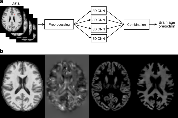 Brain age prediction using deep learning uncovers associated sequence
