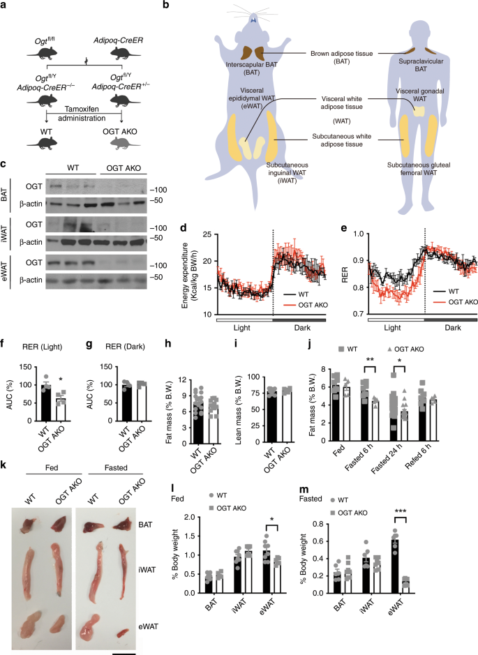 O -GlcNAc transferase inhibits visceral fat lipolysis and promotes die