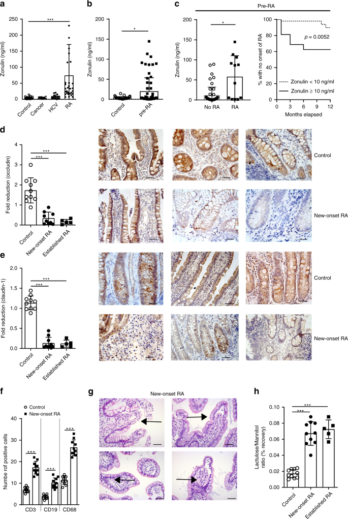 Targeting Zonulin And Intestinal Epithelial Barrier Function To Prevent Onset Of Arthritis Nature Communications