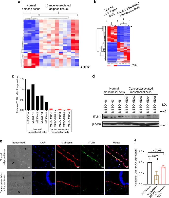 Itln1 Modulates Invasive Potential And Metabolic Reprogramming Of Ovarian Cancer Cells In Omental Microenvironment Nature Communications