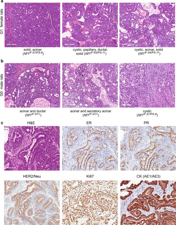 NF1 deficiency correlates with estrogen receptor signaling and