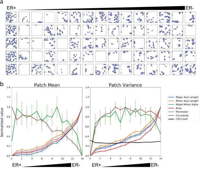 Correlating nuclear morphometric patterns with estrogen