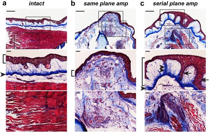 Identification of regenerative roadblocks via repeat