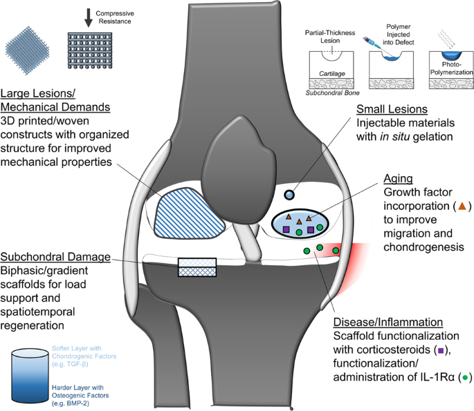 summary figure showing emerging translational therapies for potential  application in the 'red knee', including therapies that address large  lesions,