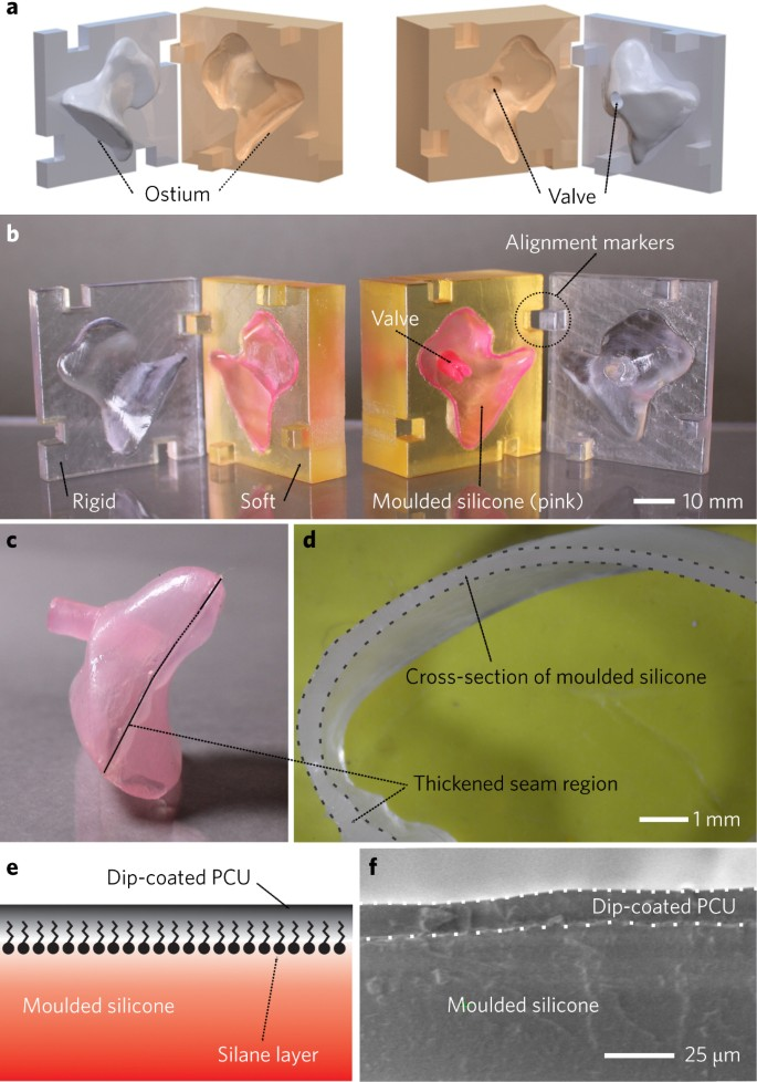 Patient-specific design of a soft occluder for the left atrial