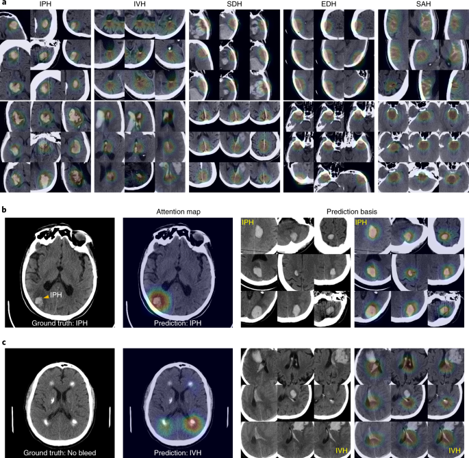 An explainable deep-learning algorithm for the detection of