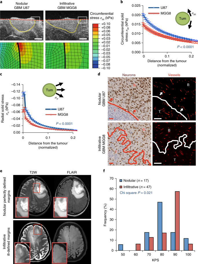 Solid stress in brain tumours causes neuronal loss and neurological