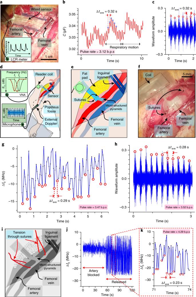 Biodegradable and flexible arterial-pulse sensor for the