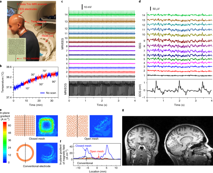 Large-area MRI-compatible epidermal electronic interfaces for
