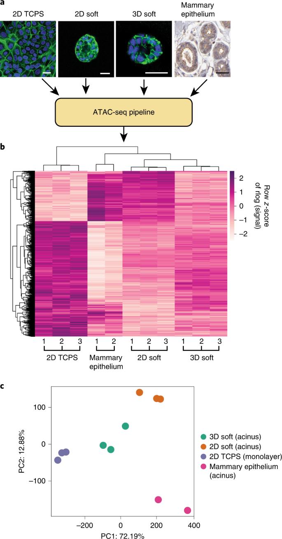 Matrix stiffness induces a tumorigenic phenotype in mammary