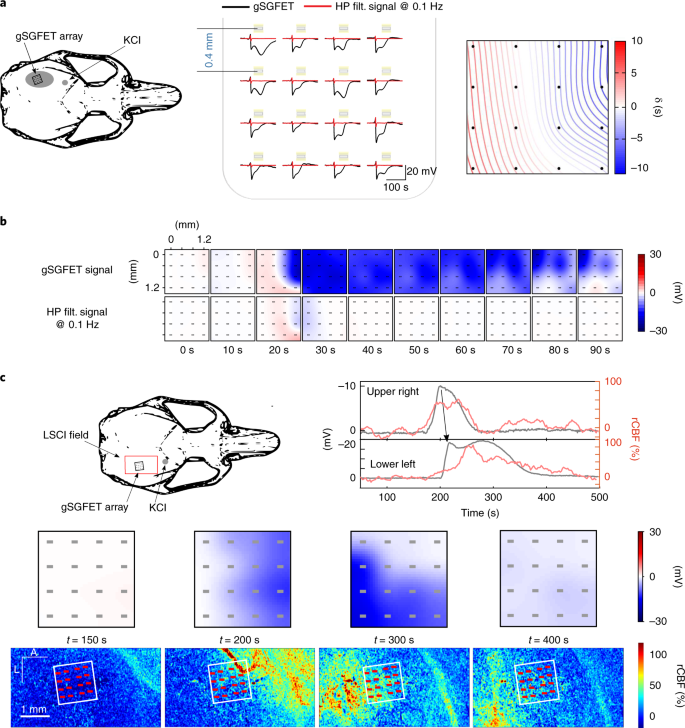 High-resolution mapping of infraslow cortical brain activity
