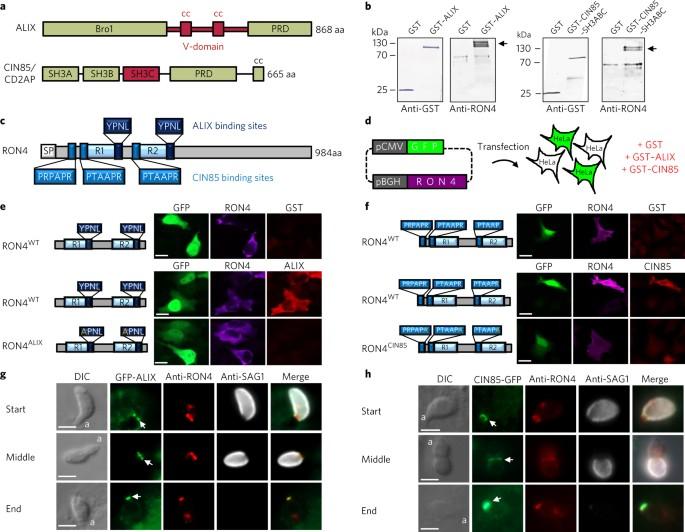 Toxoplasma gondii antitestek (IgG, IgM) - SYNLAB