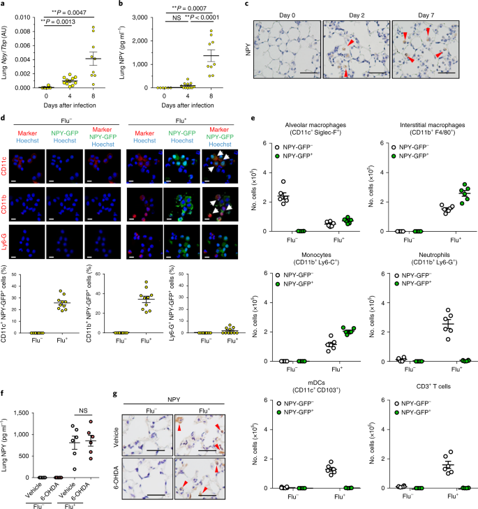 Pulmonary phagocyte-derived NPY controls the pathology of