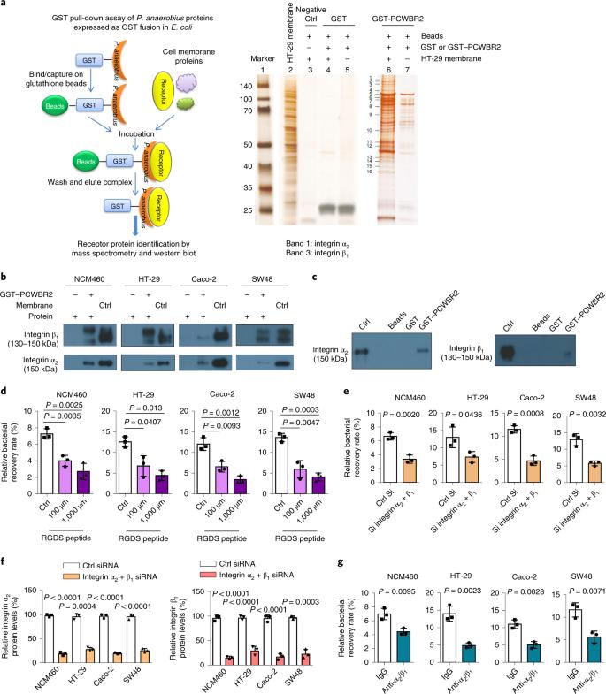 Peptostreptococcus anaerobius promotes colorectal