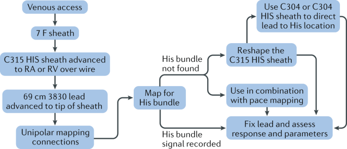 Permanent His bundle pacing: shaping the future of physiological