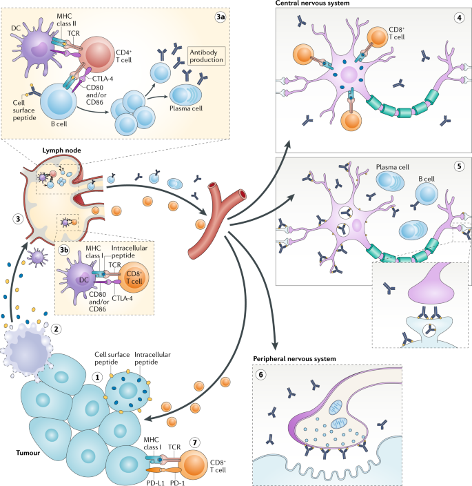Paraneoplastic Neurological Syndromes In The Era Of Immune Checkpoint Inhibitors Nature Reviews Clinical Oncology