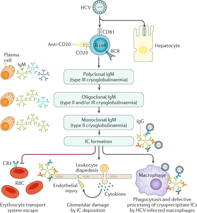 Cryoglobulinaemia | Nature Reviews Disease Primers