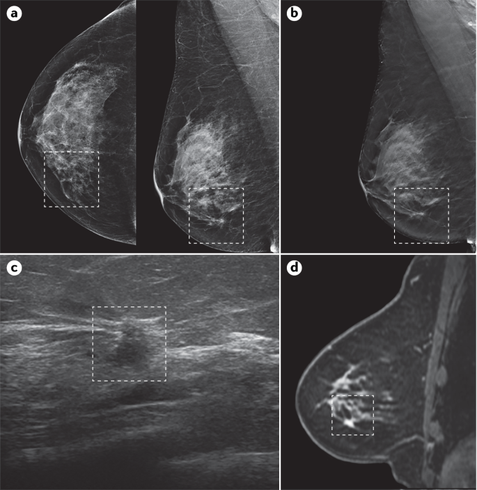 Breast Cancer Nature Reviews Disease Primers