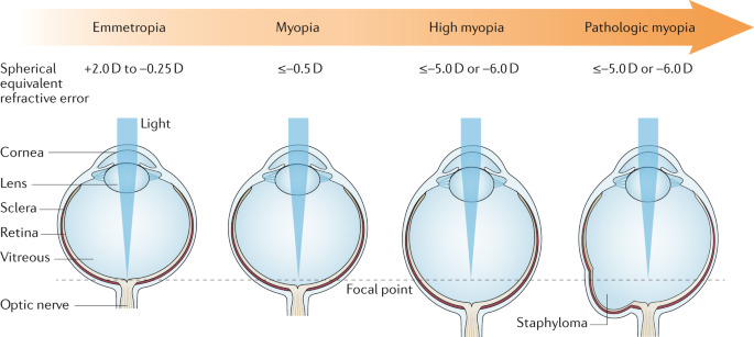 axiális myopia)