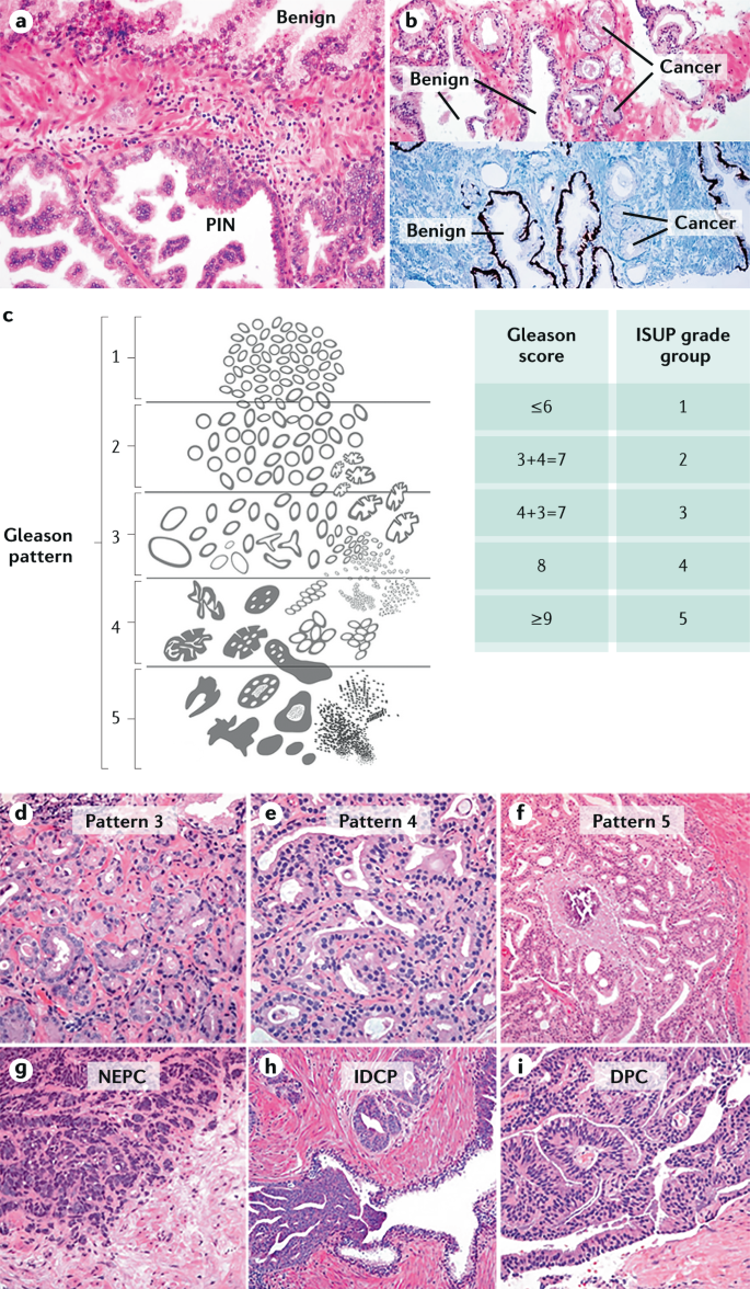 prostate cancer histological types