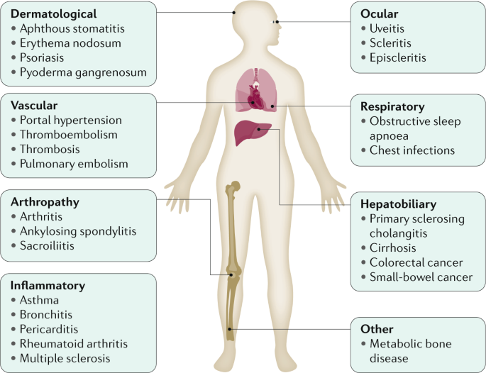 Crohn S Disease Nature Reviews Disease Primers
