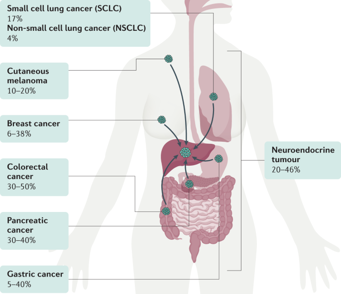 cancer metastatic to liver