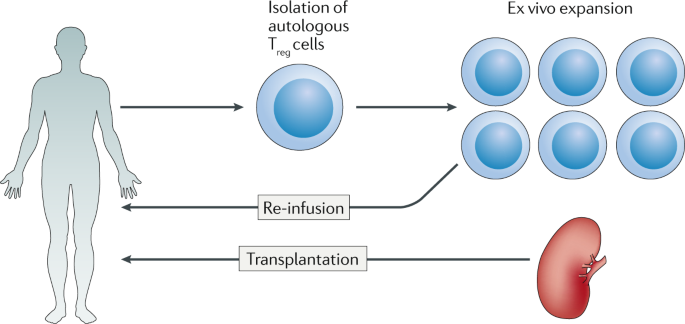 HLA in transplantation | Nature Reviews Nephrology