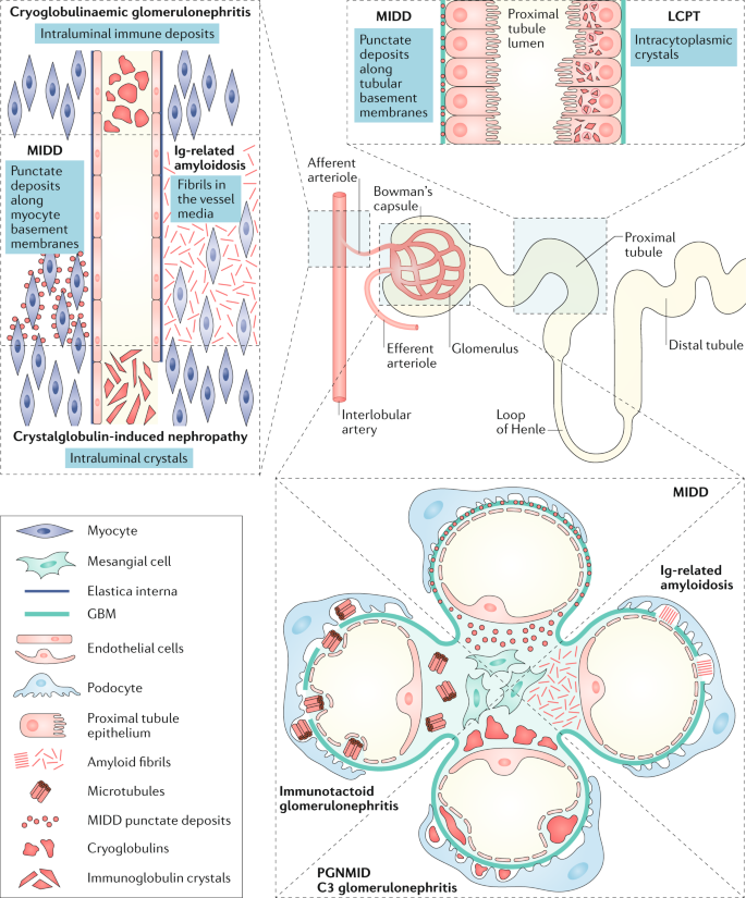 The evaluation of monoclonal gammopathy of renal significance: a