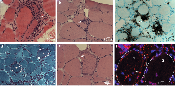 Inclusion body myositis: clinical features and pathogenesis