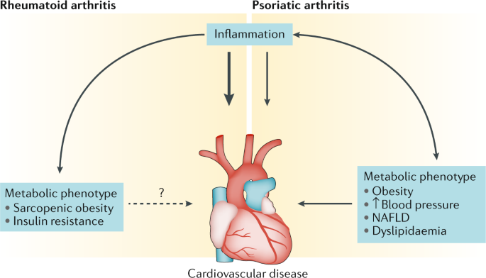 Cardiometabolic Comorbidities In Ra And Psa Lessons Learned And Future Directions Nature Reviews Rheumatology