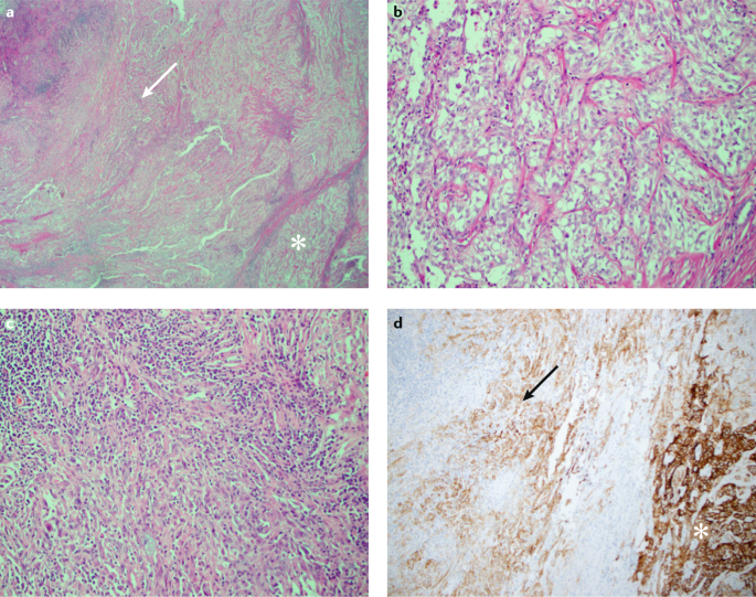 Sarcomatoid Renal Cell Carcinoma Biology Natural History And Management Nature Reviews Urology
