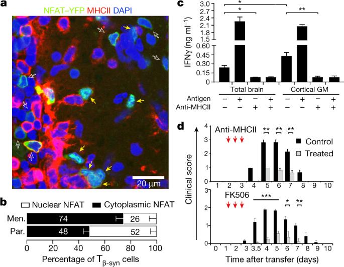 β-Synuclein-reactive T cells induce autoimmune CNS grey matter