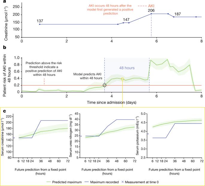 [Nature发表论文]:持续预测AKI的临床可行方法