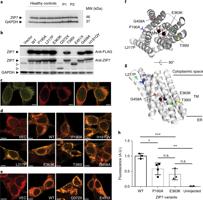 An essential role for the Zn 2+ transporter ZIP7 in B cell