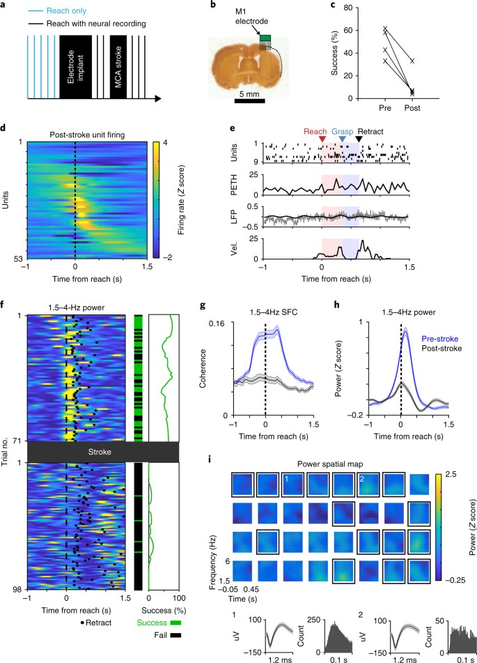 Low-frequency cortical activity is a neuromodulatory target that