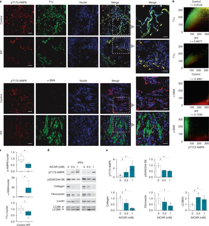 Metformin reverses established lung fibrosis in a bleomycin