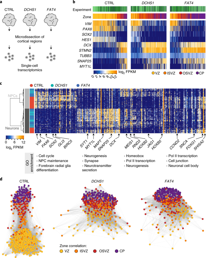 Altered neuronal migratory trajectories in human cerebral ...