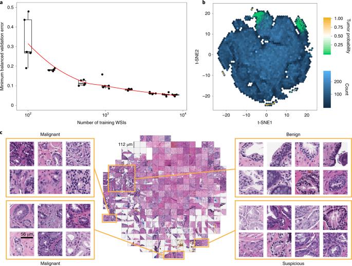 Clinical-grade computational pathology using weakly supervised deep